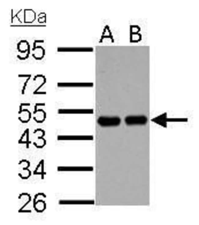 RCC1 Rabbit anti-Human, Mouse, Polyclonal, Invitrogen 100 µL; Unconjugated
