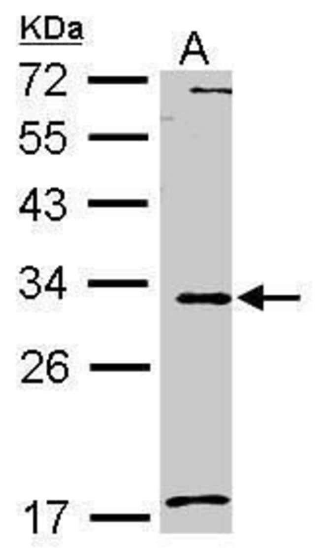 MMP7 Rabbit anti-Human, Mouse, Polyclonal, Invitrogen 100 µL; Unconjugated