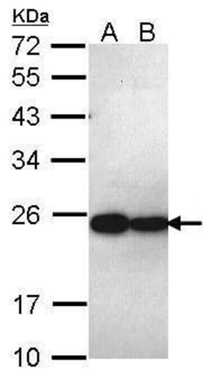PSMB5 Rabbit anti-Human, Polyclonal, Invitrogen 100 µL; Unconjugated