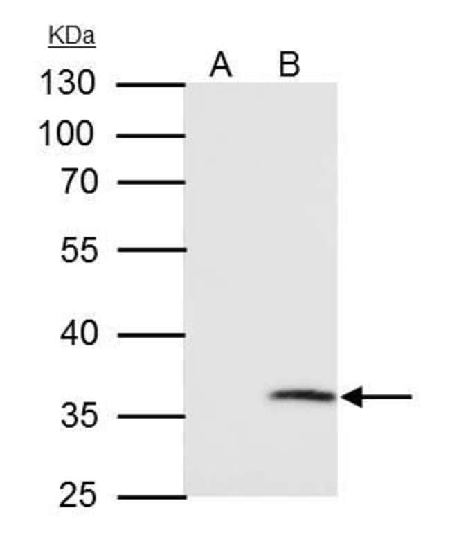 VDAC2 Rabbit anti-Human, Mouse, Polyclonal, Invitrogen 100 µL; Unconjugated