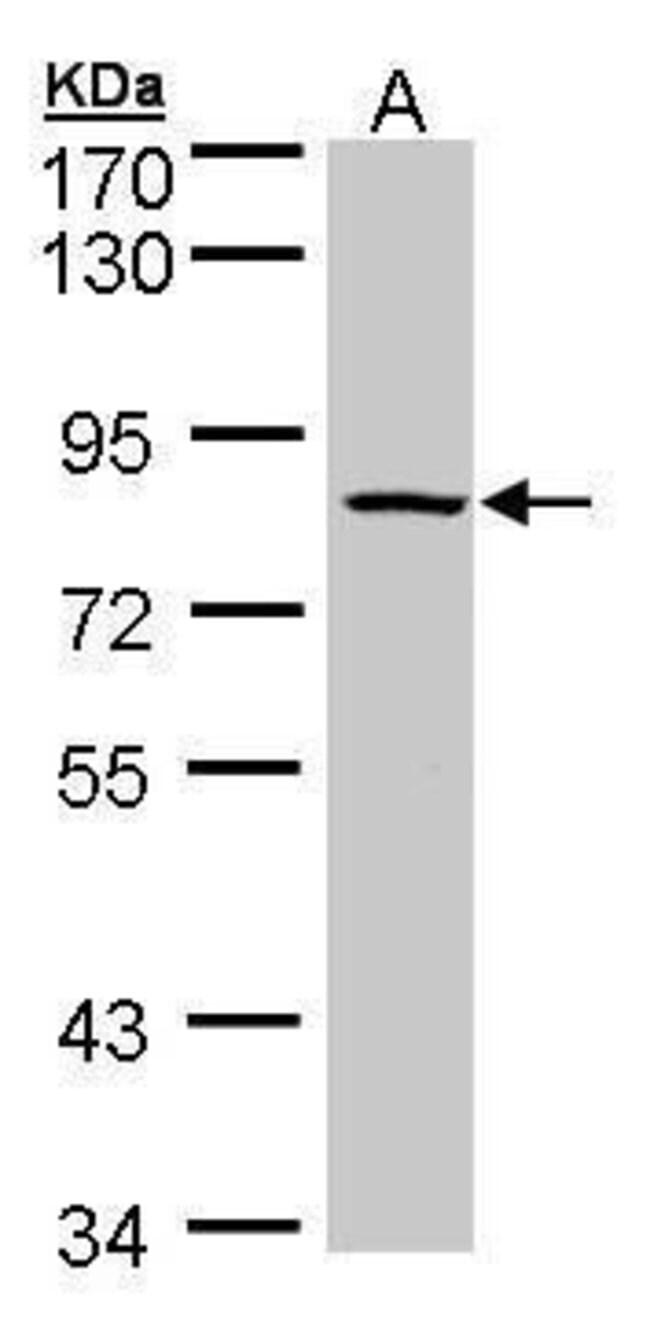 ADAM33 Rabbit anti-Human, Polyclonal, Invitrogen 100 µL; Unconjugated