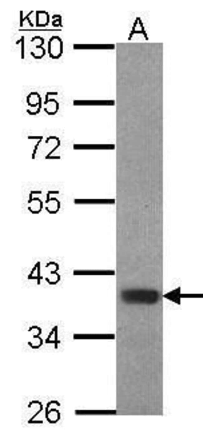 FOXB1 Rabbit anti-Human, Polyclonal, Invitrogen 100 µL; Unconjugated