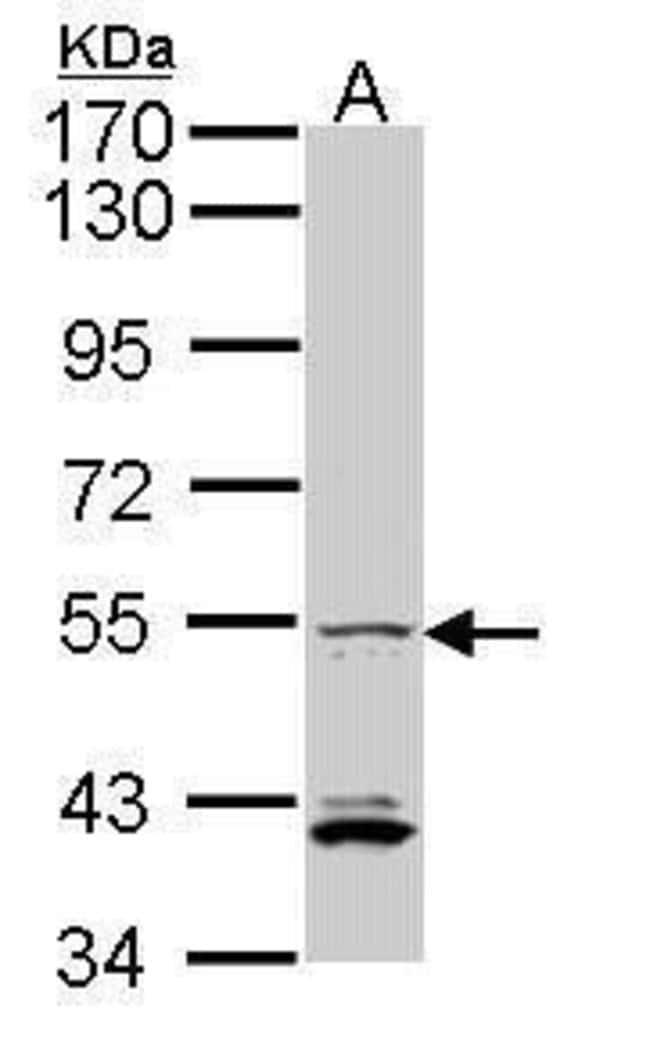 IRF5 Rabbit anti-Human, Polyclonal, Invitrogen 100 µL; Unconjugated