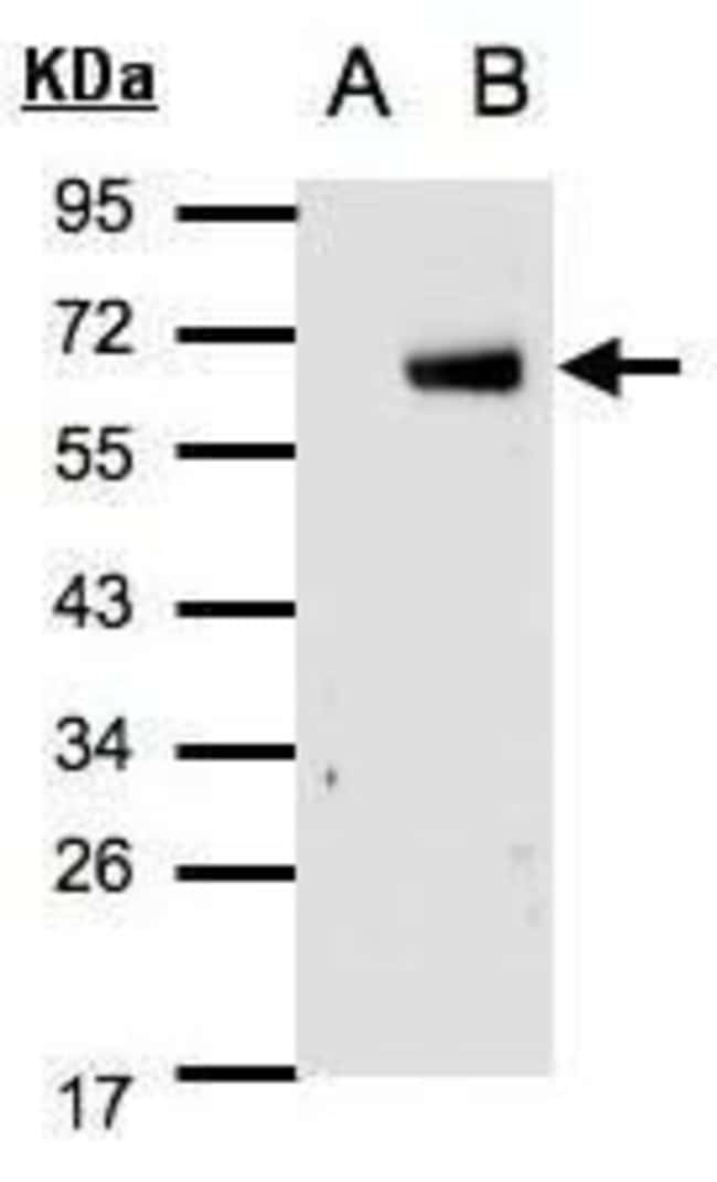 IRF6 Rabbit anti-Human, Mouse, Polyclonal, Invitrogen 100 µL; Unconjugated