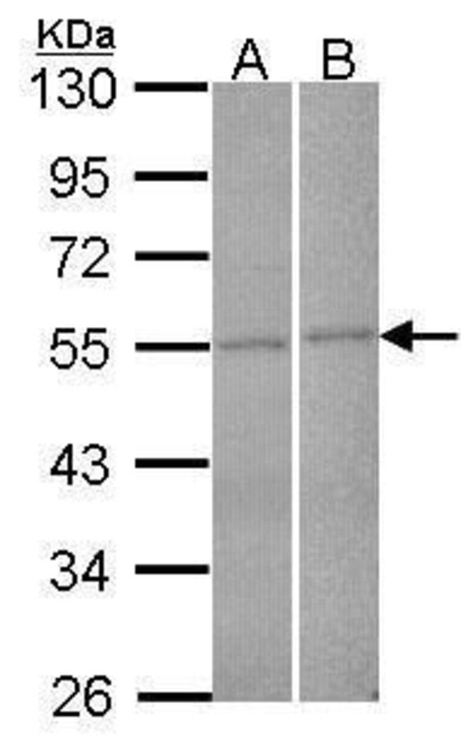 FBXL2 Rabbit anti-Human, Polyclonal, Invitrogen 100 µL; Unconjugated