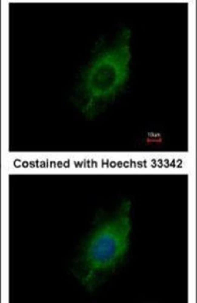 Kinesin 5A Rabbit anti-Human, Mouse, Polyclonal, Invitrogen 100 µL;