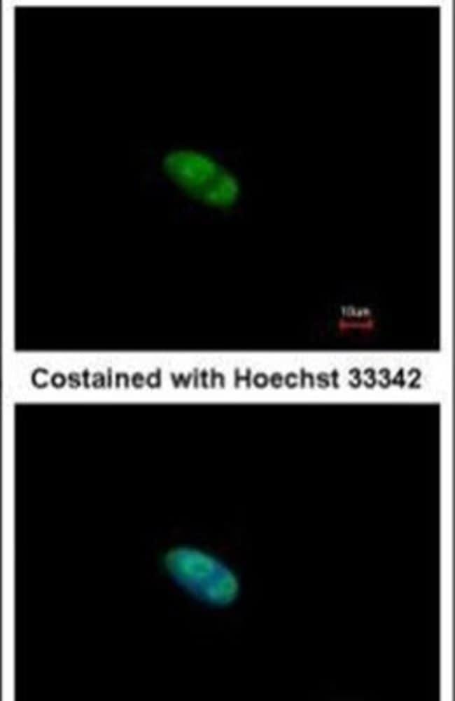 ZNF148 Rabbit anti-Human, Polyclonal, Invitrogen 100 µL; Unconjugated