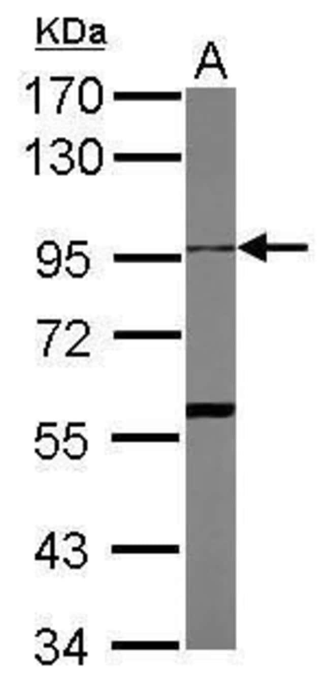 ADAM10 Rabbit anti-Human, Polyclonal, Invitrogen 100 µL; Unconjugated