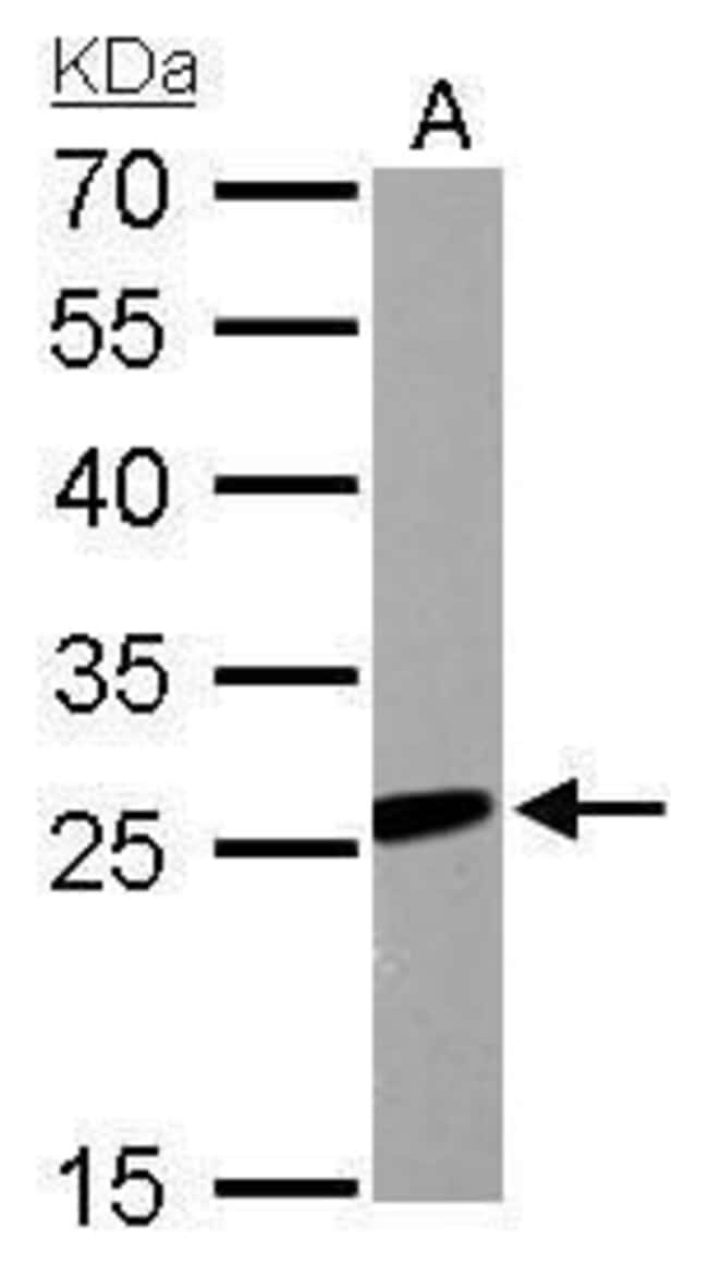 RGS2 Rabbit anti-Human, Mouse, Polyclonal, Invitrogen 100 µL; Unconjugated