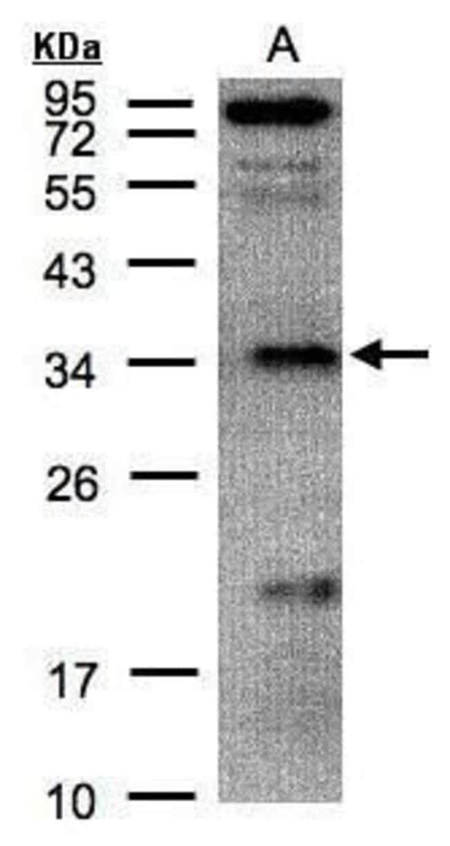 FN3KRP Rabbit anti-Human, Polyclonal, Invitrogen 100 µL; Unconjugated