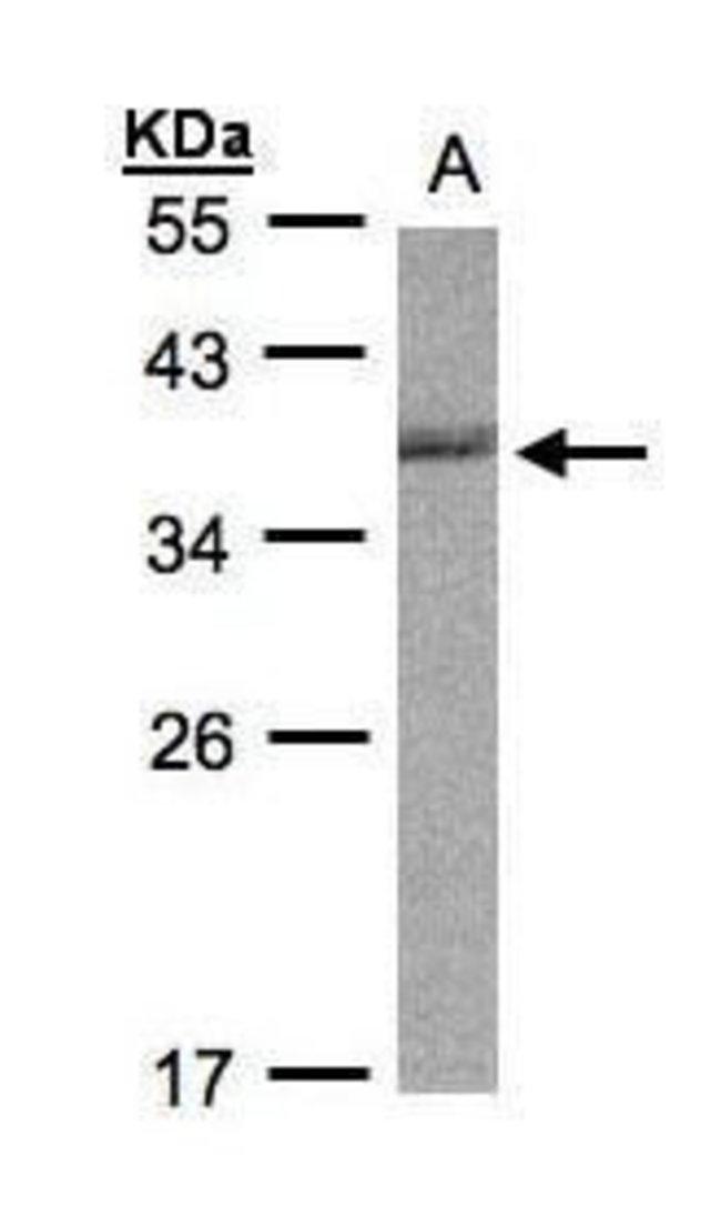Cdc34 Rabbit anti-Human, Mouse, Polyclonal, Invitrogen 100 µL; Unconjugated