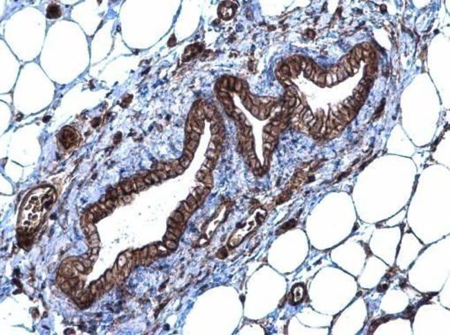 SLC20A1 Rabbit anti-Human, Mouse, Polyclonal, Invitrogen 100 µL; Unconjugated