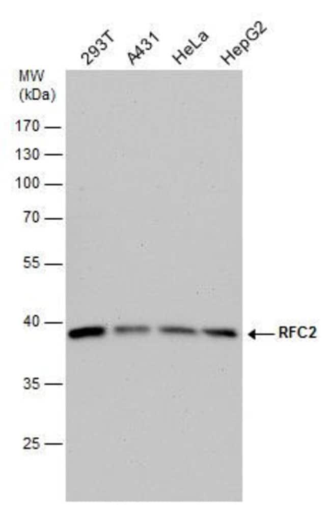 RFC2 Rabbit anti-Human, Polyclonal, Invitrogen 100 µL; Unconjugated