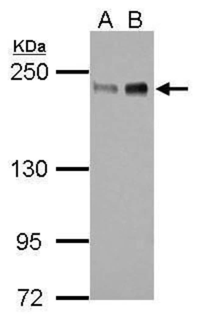 ZEB1 Rabbit anti-Human, Polyclonal, Invitrogen 100 µL; Unconjugated