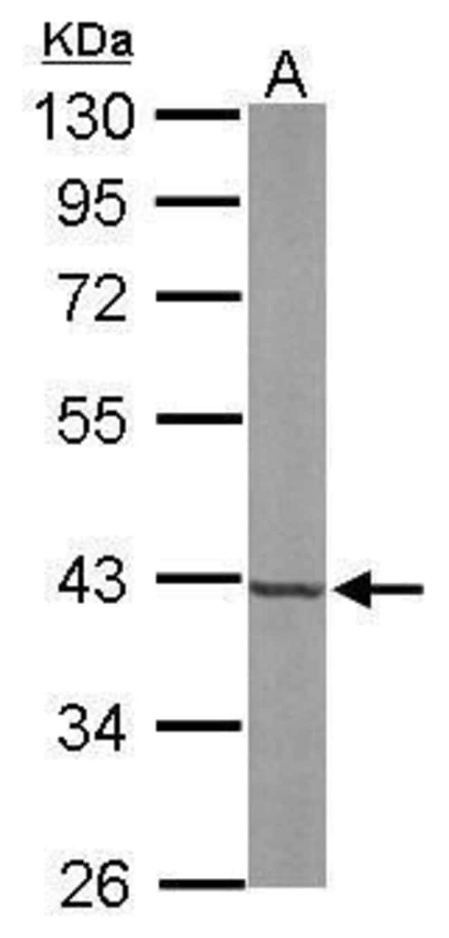 FDPS Rabbit anti-Human, Mouse, Polyclonal, Invitrogen 100 µL; Unconjugated