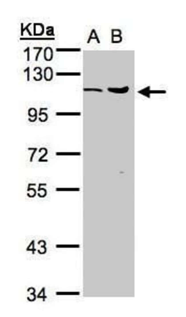 USP5 Rabbit anti-Human, Mouse, Polyclonal, Invitrogen 100 µL; Unconjugated
