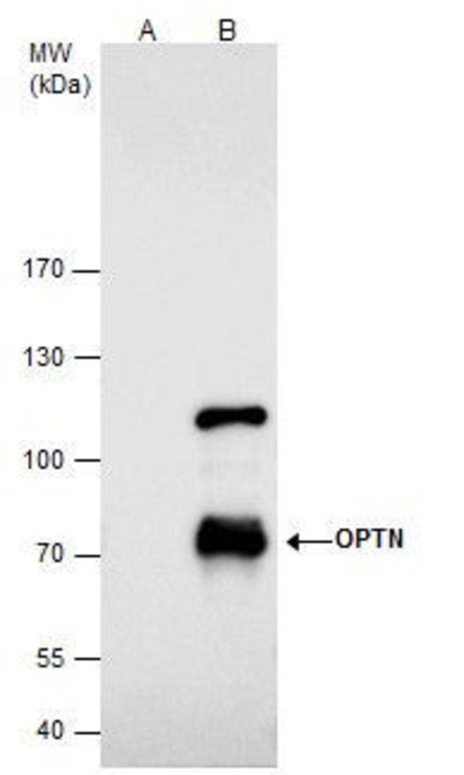 Optineurin Rabbit anti-Human, Polyclonal, Invitrogen 100 µL; Unconjugated