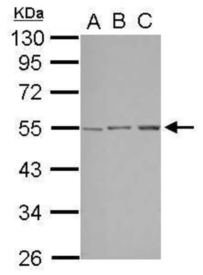 STK38L Rabbit anti-Human, Polyclonal, Invitrogen 100 µL; Unconjugated