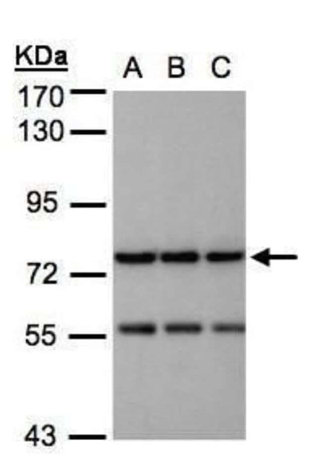 NAGLU Rabbit anti-Human, Polyclonal, Invitrogen 100 µL; Unconjugated