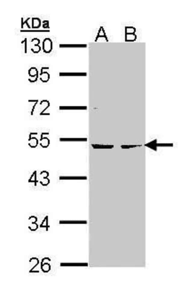 PRKAR2B Rabbit anti-Human, Mouse, Polyclonal, Invitrogen 100 µL; Unconjugated