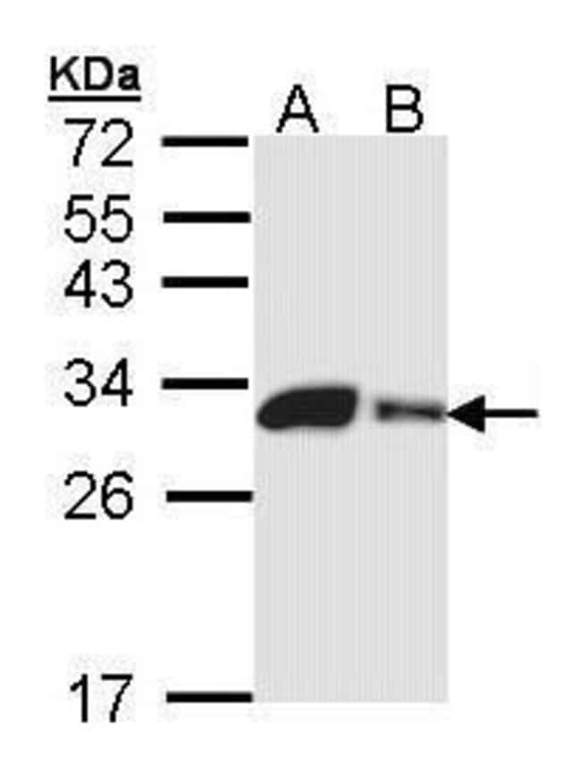 Carbonic Anhydrase II Rabbit anti-Human, Mouse, Polyclonal, Invitrogen