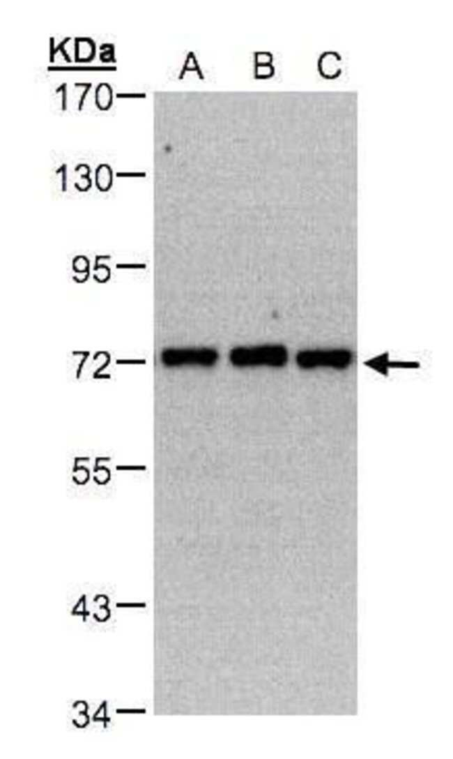 PIP5K1C Rabbit anti-Human, Mouse, Polyclonal, Invitrogen 100 µL; Unconjugated
