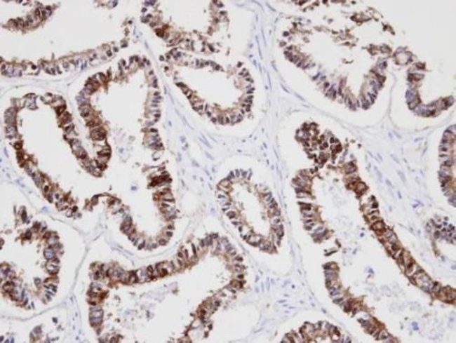 Cytokeratin 18 Rabbit anti-Human, Polyclonal, Invitrogen 100 µL; Unconjugated