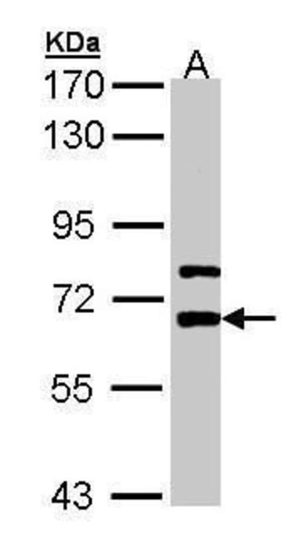 LGI1 Rabbit anti-Human, Polyclonal, Invitrogen 100 µL; Unconjugated