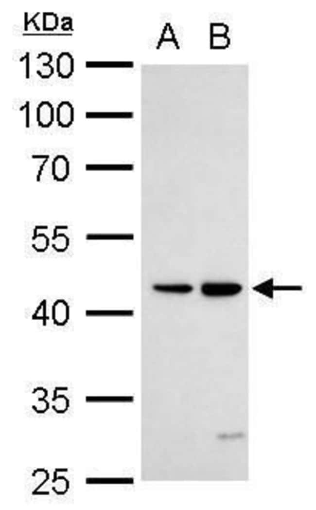 DR3 Rabbit anti-Human, Polyclonal, Invitrogen 100 µL; Unconjugated