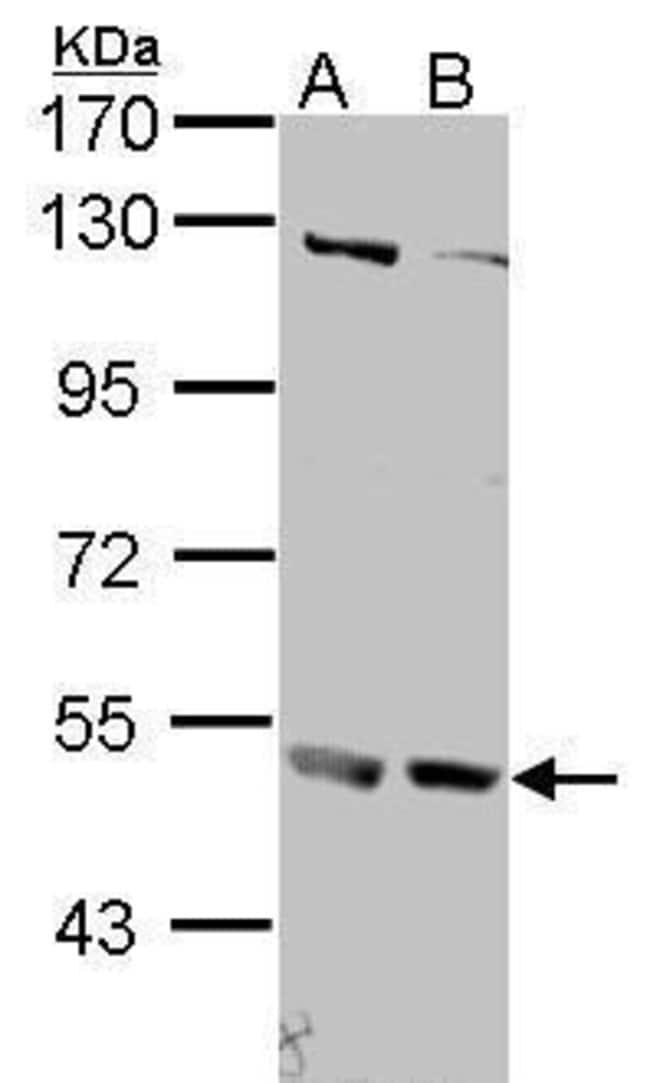 IFNAR2 Rabbit anti-Human, Polyclonal, Invitrogen 100 µL; Unconjugated