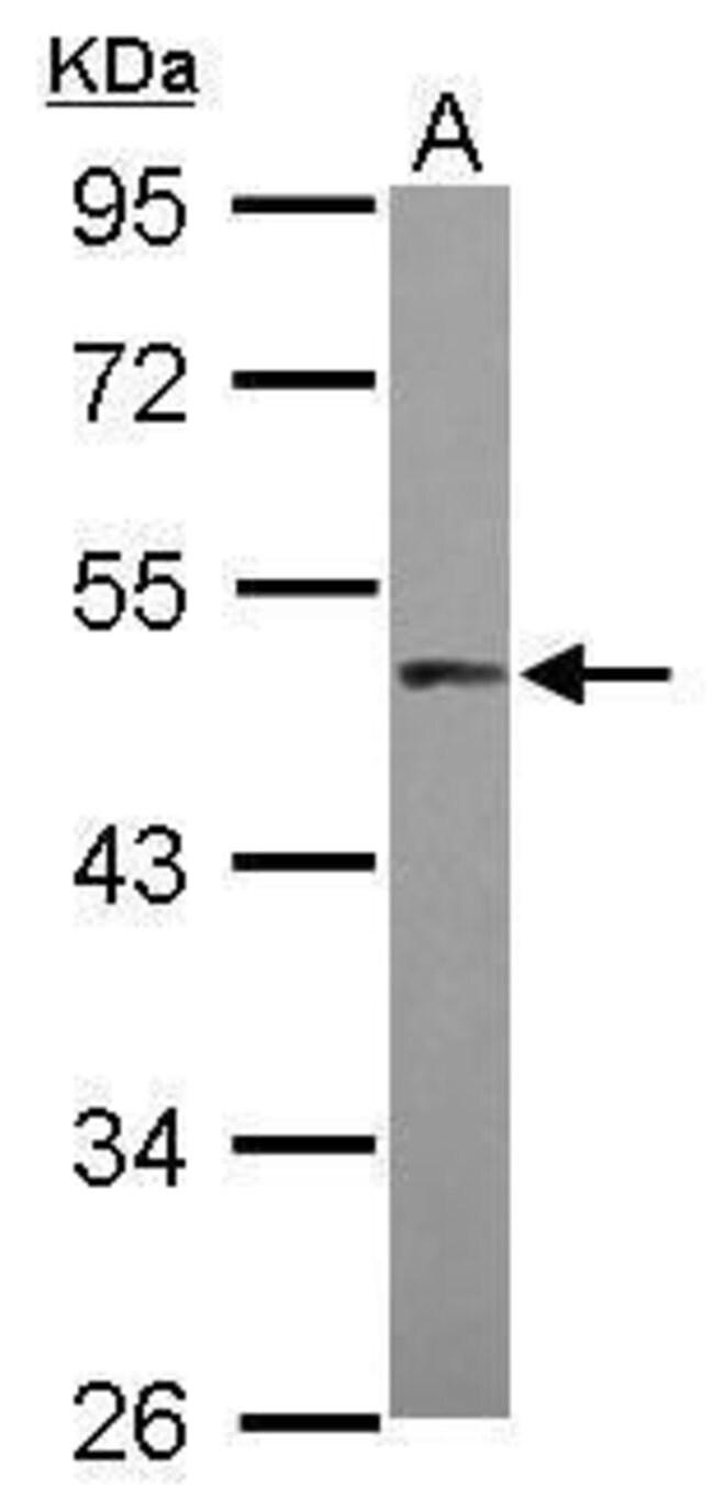 PRAK Rabbit anti-Human, Polyclonal, Invitrogen 100 µL; Unconjugated