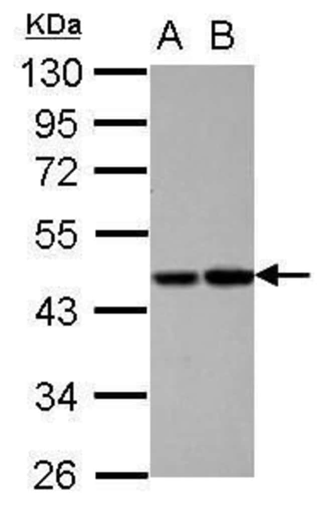 Protein C Rabbit anti-Human, Polyclonal, Invitrogen 100 µL; Unconjugated