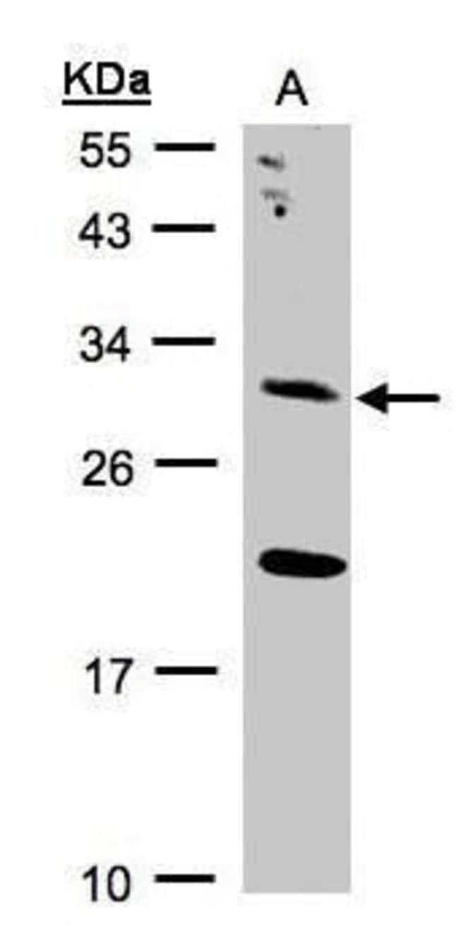 UROS Rabbit anti-Human, Polyclonal, Invitrogen 100 µL; Unconjugated