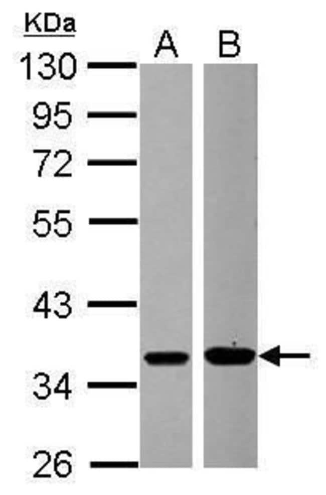 MEK6 Rabbit anti-Human, Polyclonal, Invitrogen 100 µL; Unconjugated