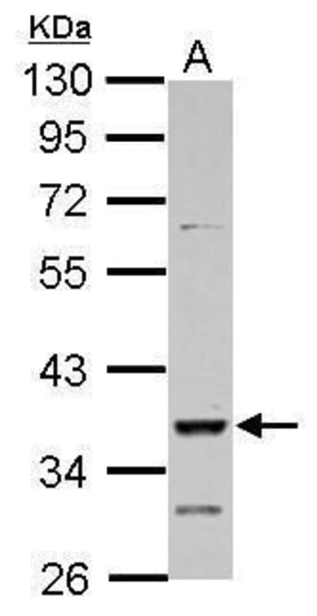 DMRT1 Rabbit anti-Human, Polyclonal, Invitrogen 100 µL; Unconjugated