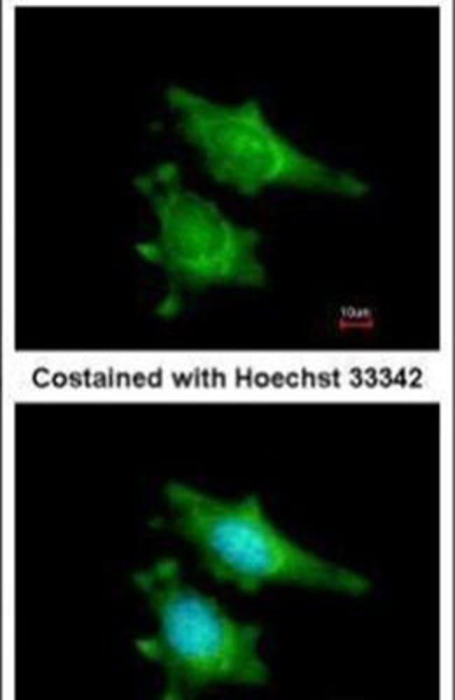 RIP2 Rabbit anti-Human, Polyclonal, Invitrogen 100 µL; Unconjugated
