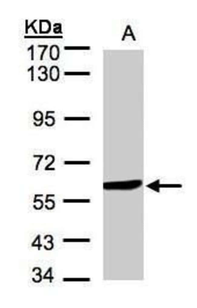 Monoamine Oxidase B Rabbit anti-Human, Mouse, Polyclonal, Invitrogen 100
