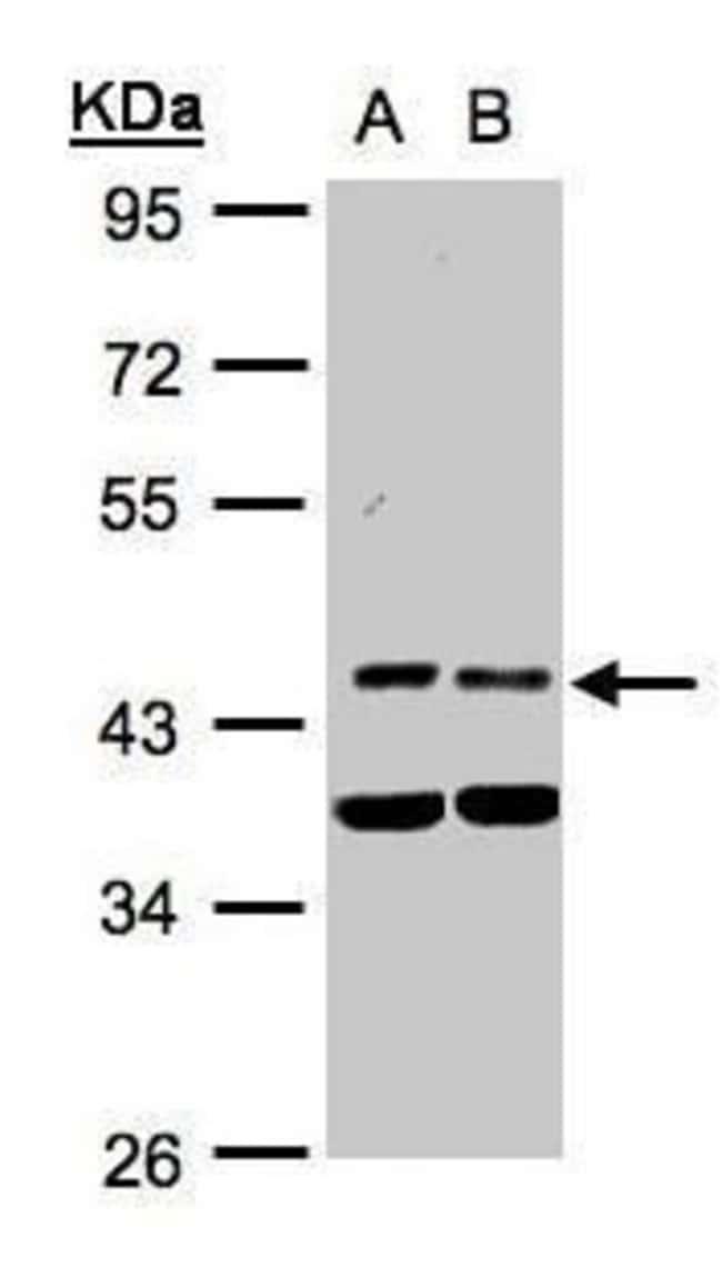 PDK1 Rabbit anti-Human, Polyclonal, Invitrogen 100 µL; Unconjugated