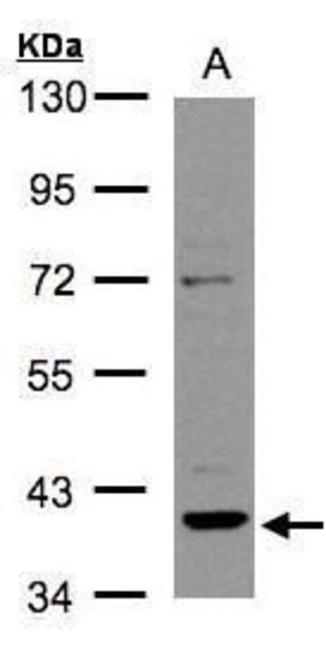 RAD51B Rabbit anti-Human, Polyclonal, Invitrogen 100 µL; Unconjugated