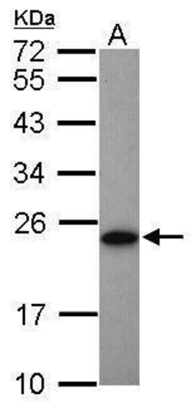 Adenylate Kinase 1 Rabbit anti-Human, Mouse, Polyclonal, Invitrogen 100
