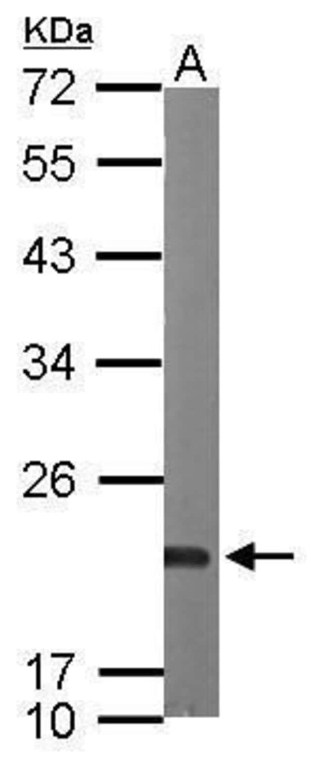 Sorcin Rabbit anti-Human, Mouse, Polyclonal, Invitrogen 100 µL; Unconjugated