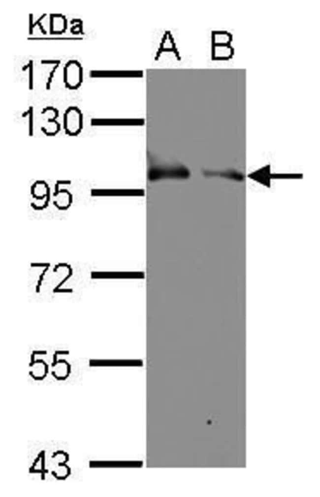 KELL Rabbit anti-Human, Polyclonal, Invitrogen 100 µL; Unconjugated