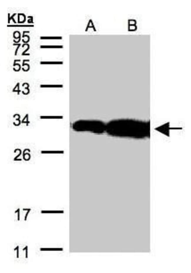 HOXC11 Rabbit anti-Human, Polyclonal, Invitrogen 100 µL; Unconjugated