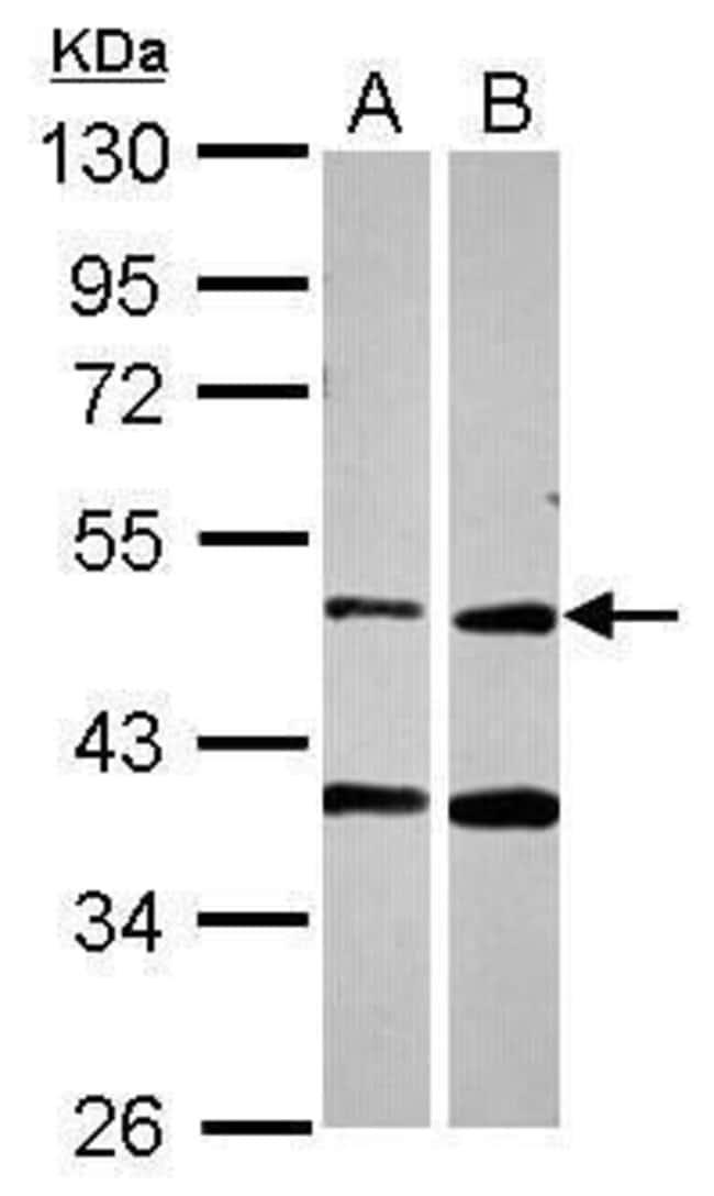 PPOX Rabbit anti-Human, Polyclonal, Invitrogen 100 µL; Unconjugated