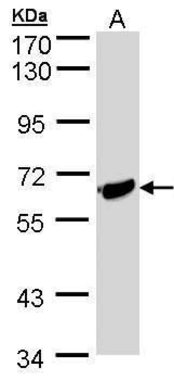 ST2 Rabbit anti-Human, Polyclonal, Invitrogen 100 µL; Unconjugated
