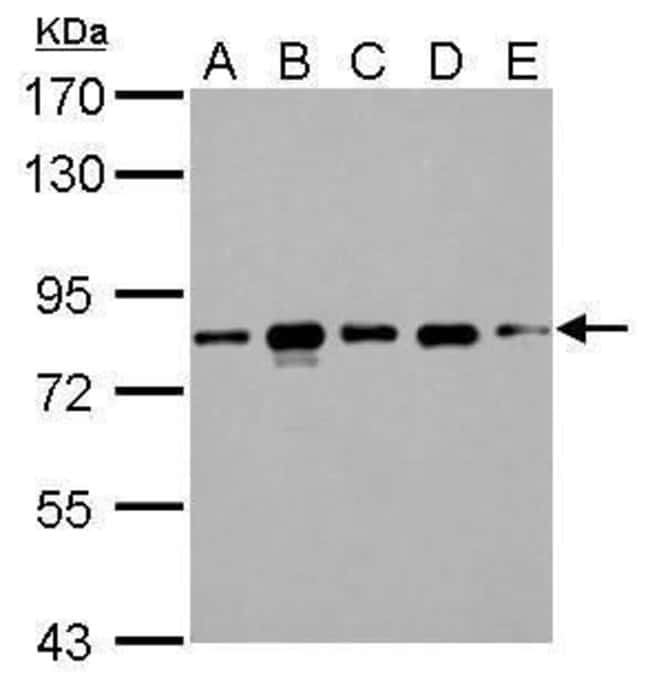 CD2AP Rabbit anti-Human, Rat, Polyclonal, Invitrogen 100 µL; Unconjugated