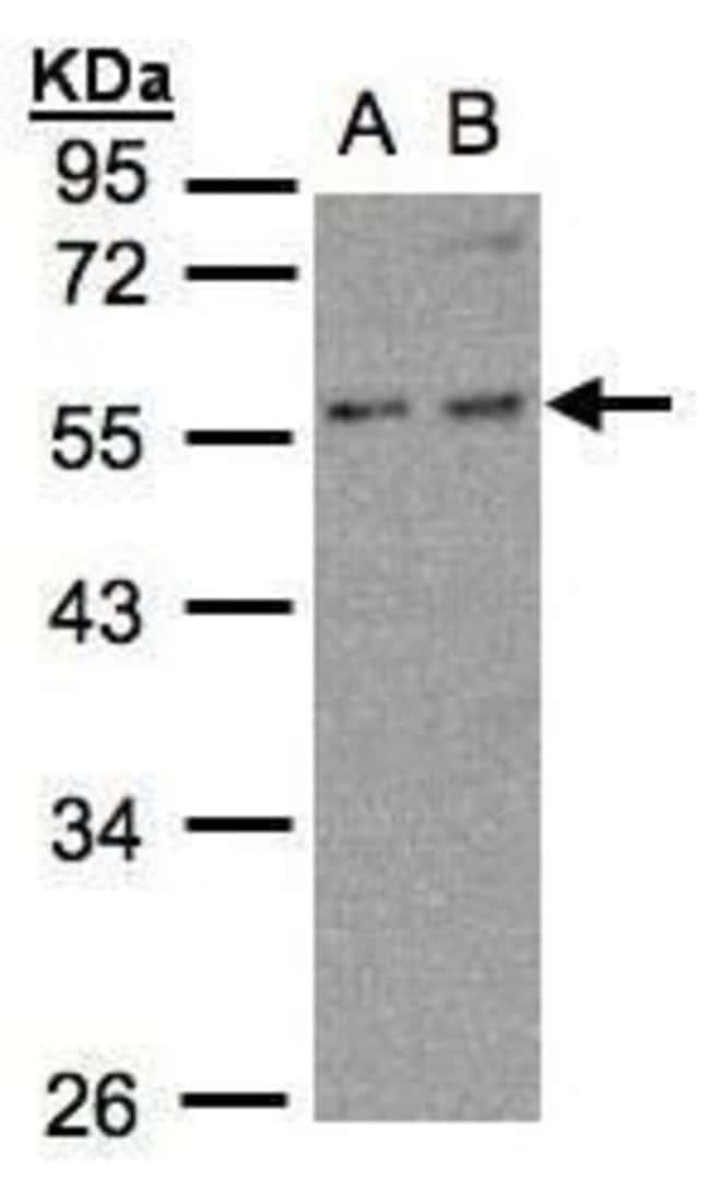 PFKFB4 Rabbit anti-Human, Mouse, Polyclonal, Invitrogen 100 µL; Unconjugated