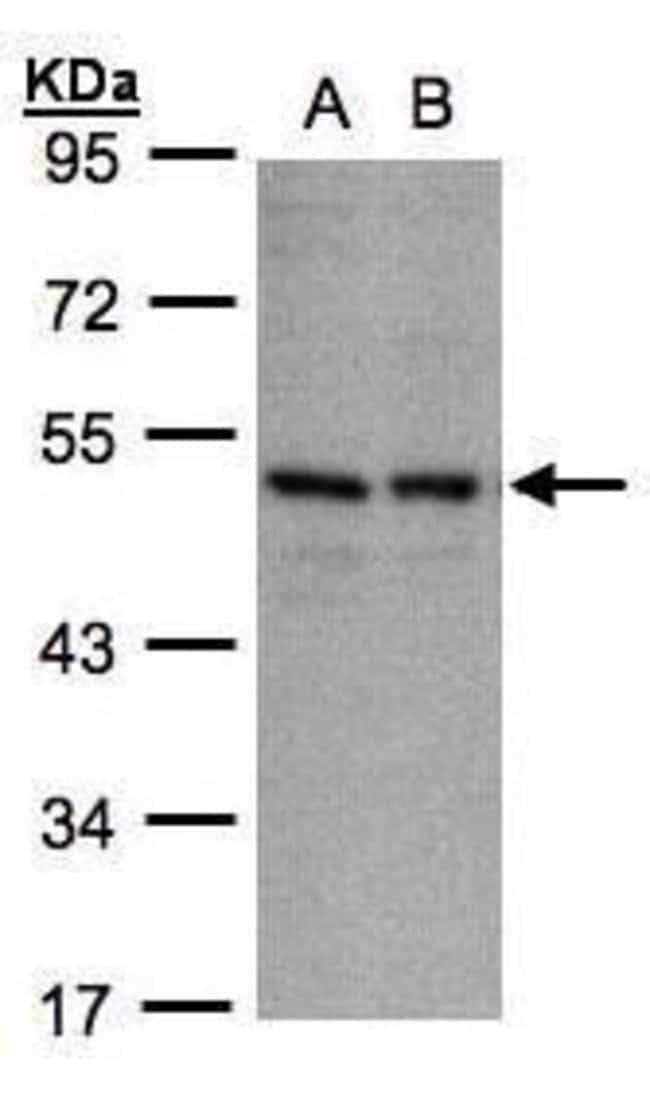KIR3DL1 Rabbit anti-Human, Polyclonal, Invitrogen 100 µL; Unconjugated