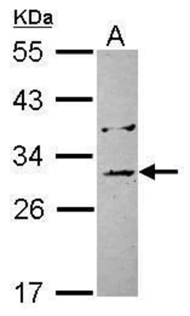 EB1 Rabbit anti-Human, Polyclonal, Invitrogen 100 µL; Unconjugated