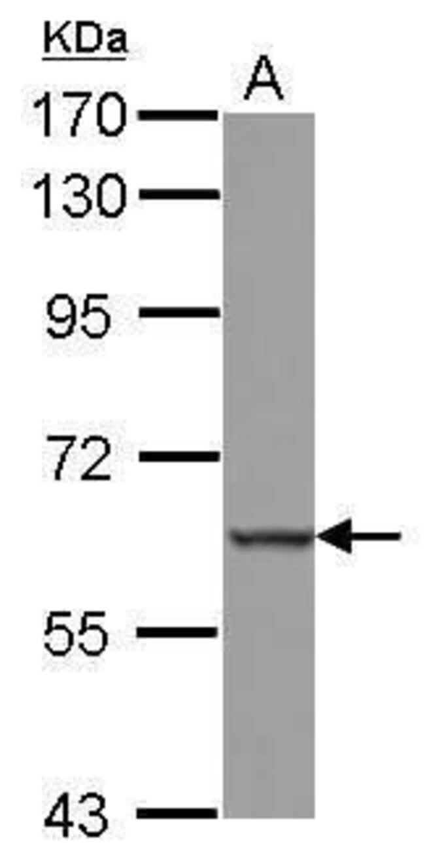 MEFV Rabbit anti-Human, Polyclonal, Invitrogen 100 µL; Unconjugated